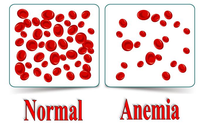 نکاتی برای بررسی نتایج آزمایشگاهی بیماران آنمیک, Drug Med