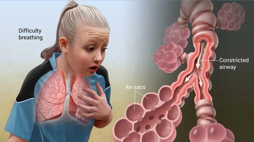 بیماری های ریه, Drug Med