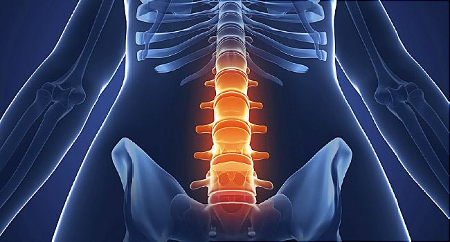 Ankylosing spondylitis اسپوندیلیت انکیلوزان, Drug Med