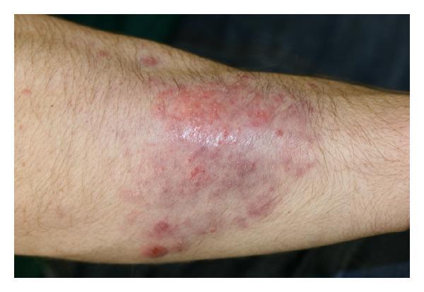 Majocchi's granuloma (MG), Drug Med