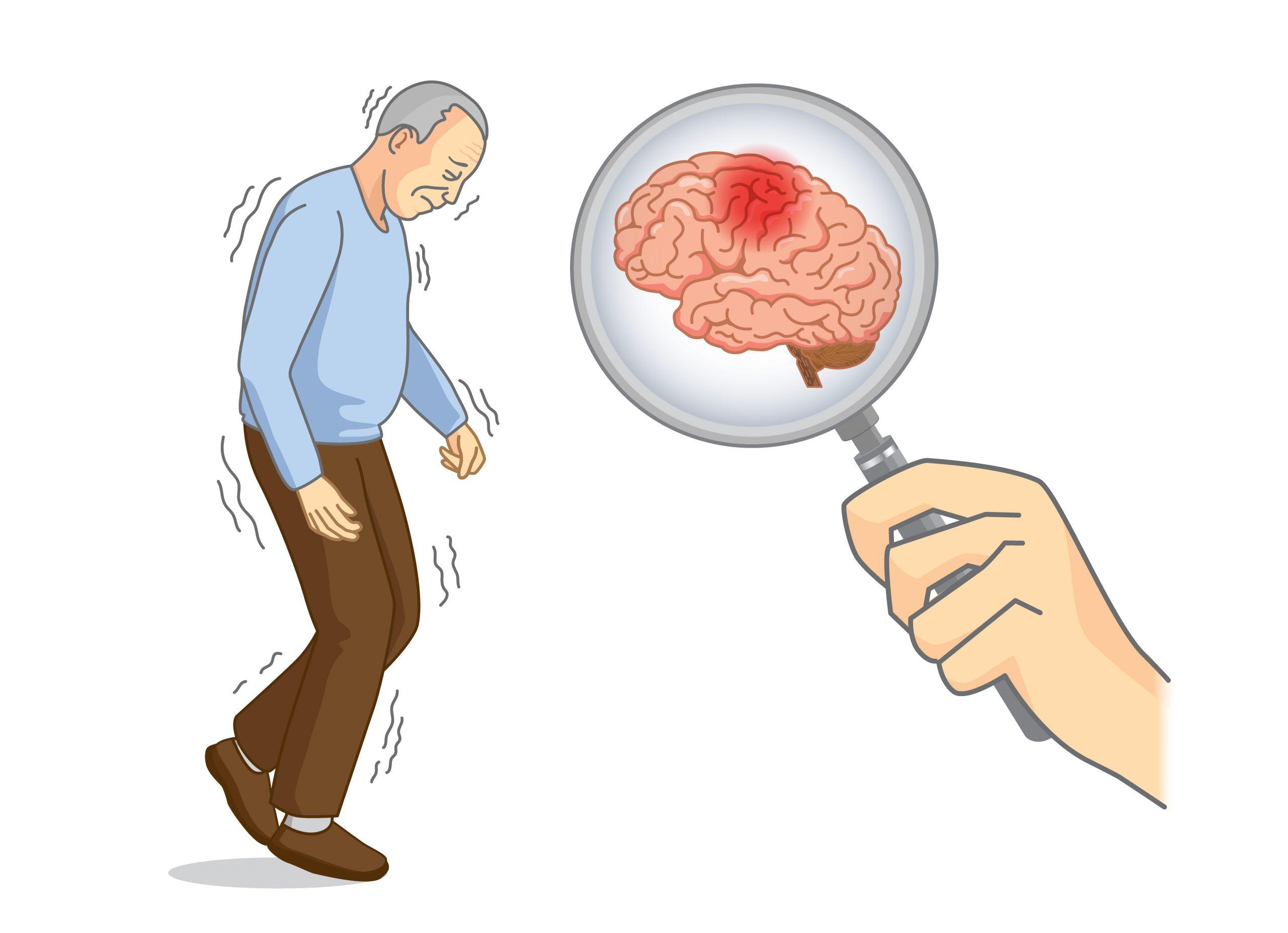 پارکینسون: علائم و روش های درمان, Drug Med