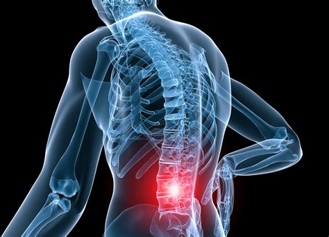 درمان کمر درد با حرکات ورزشی, Drug Med