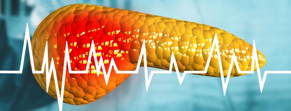 روشهای تشخیص پانکراتیت حاد, Drug Med