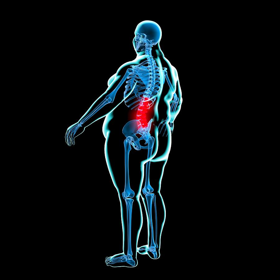 کمر درد چاقی, Drug Med