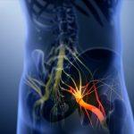 بیماری های مغز و اعصاب, Drug Med