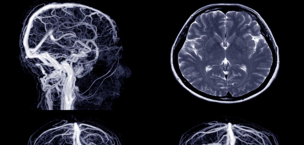 سکته مغزی: درمان و علائم, Drug Med
