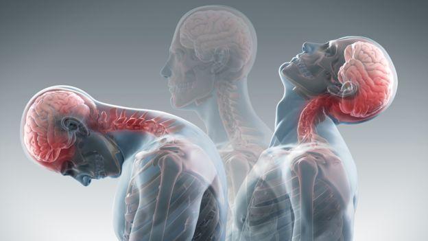 Whiplash injury آسیب ویپلش, Drug Med