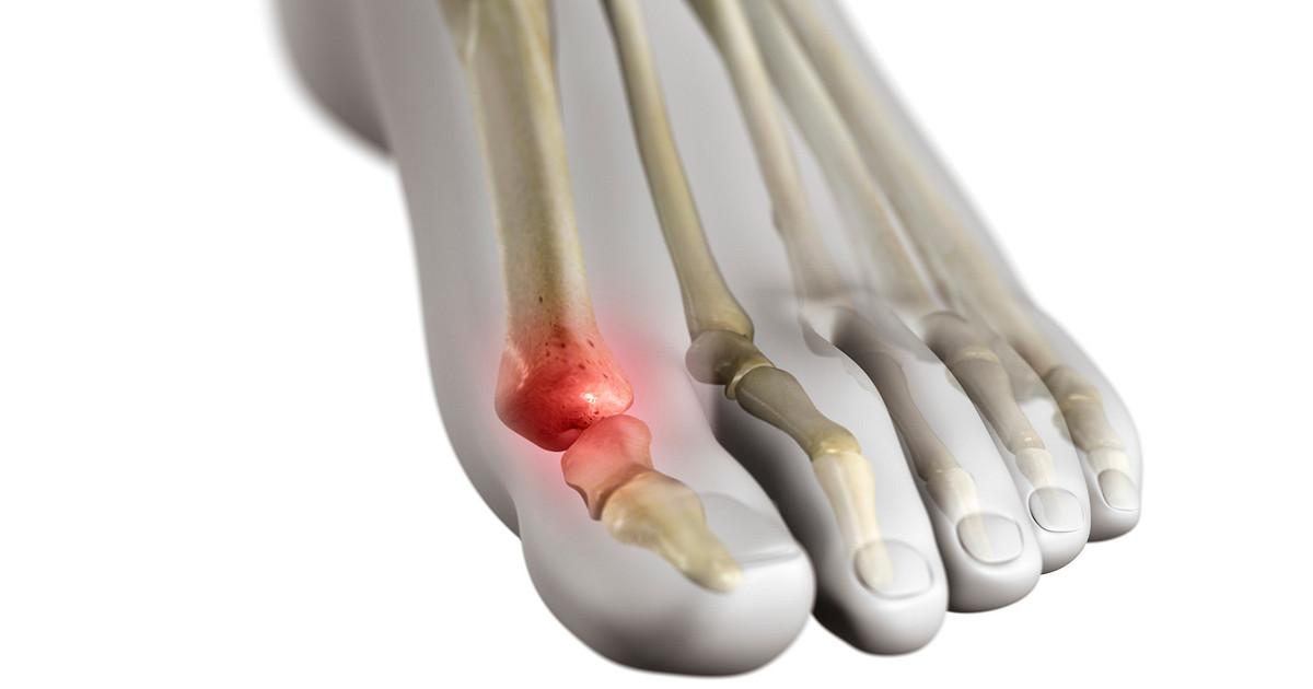 درمان کشیدگی و رگ به رگ شدن شست پا