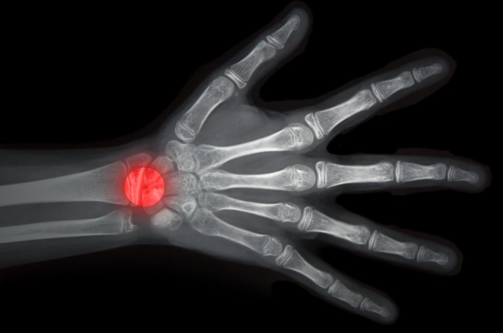 تشخیص و درمان بیماری دکرون در مچ دست, Drug Med