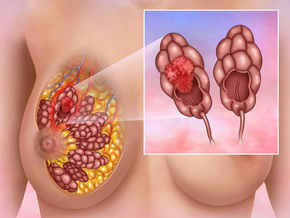 مروری بر سرطان سینه و تشخیص اولیه ی آن