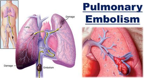 Pulmonary embolism آمبولی ریه, Drug Med: مجله ی فوق تخصصی دارو، پزشکی، تشخیص و کرونا ویروس ۱۹