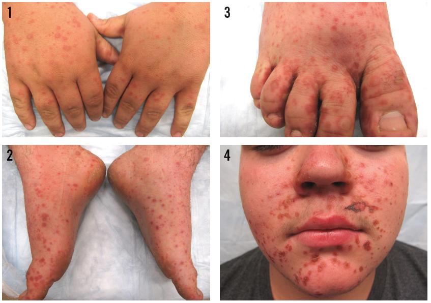 HFMDبیماری دست و پا و دهان کودکان, Drug Med: مجله ی فوق تخصصی دارو، پزشکی، تشخیص و کرونا ویروس ۱۹