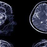 بیماری های مغز و اعصاب, Drug Med: مجله ی فوق تخصصی دارو، پزشکی، تشخیص و کرونا ویروس ۱۹