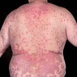 بیماری های پوستی, Drug Med: مجله ی فوق تخصصی دارو، پزشکی، تشخیص و کرونا ویروس ۱۹
