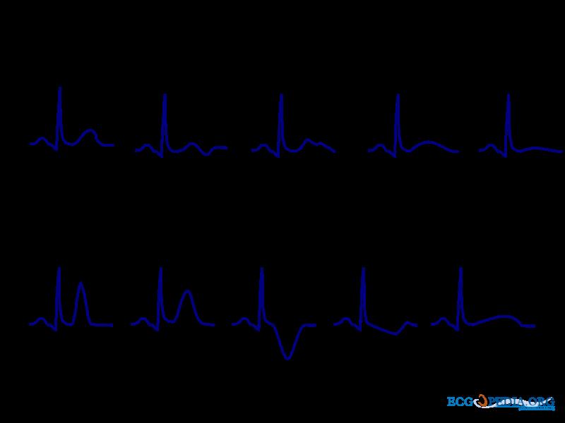 خصوصیات موج تی در نوار قلب T, Drug Med: مجله ی فوق تخصصی دارو، پزشکی، تشخیص و کرونا ویروس ۱۹